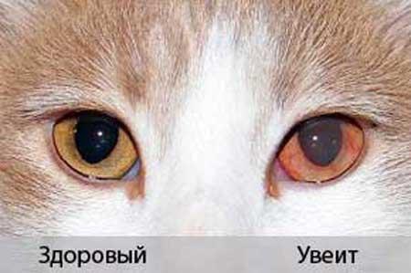 Нормальный глаз и увеит