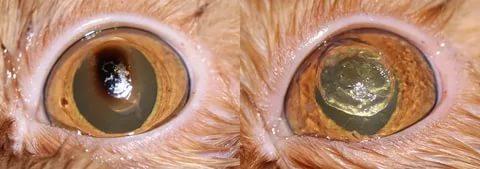 Секвестр до и после кератоэктомии